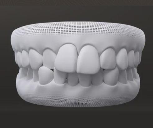 Dentes Apinhados Dra Samanta Nigro